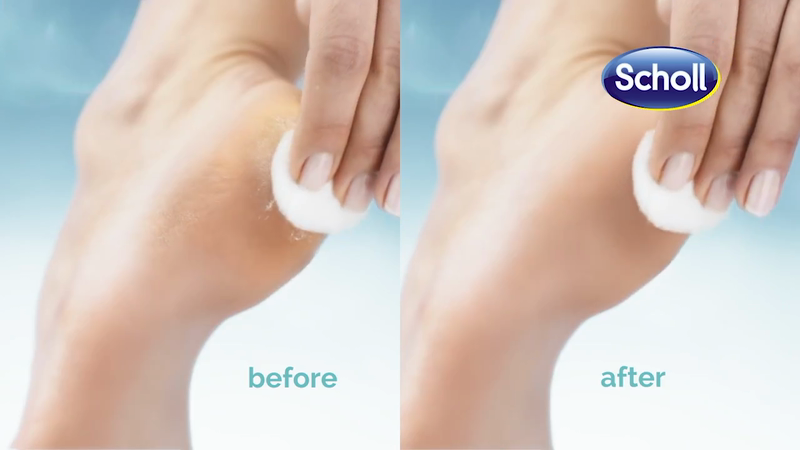 Scholl - Perfect Pedi World