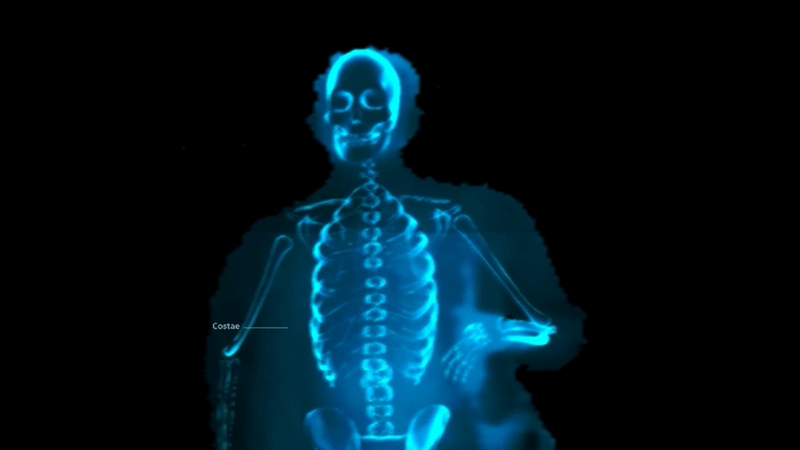 Microsoft Surface Pro 4 Posture Scanner